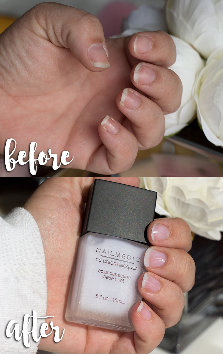 NailMedic | 3 Steps To Fabulous Nails