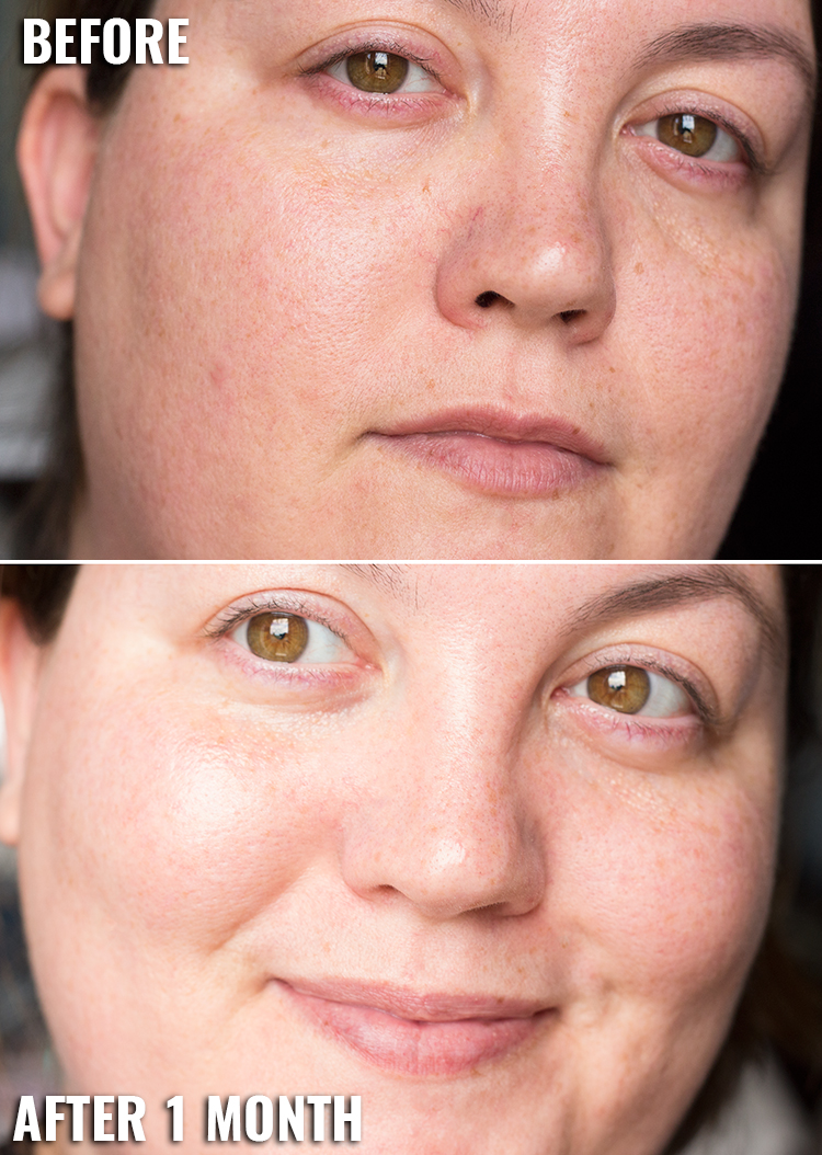 Receutics Active Skin Repair | Before and After